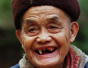 Apakah gigi kita yang sudah dicabut bisa tumbuh kembali?